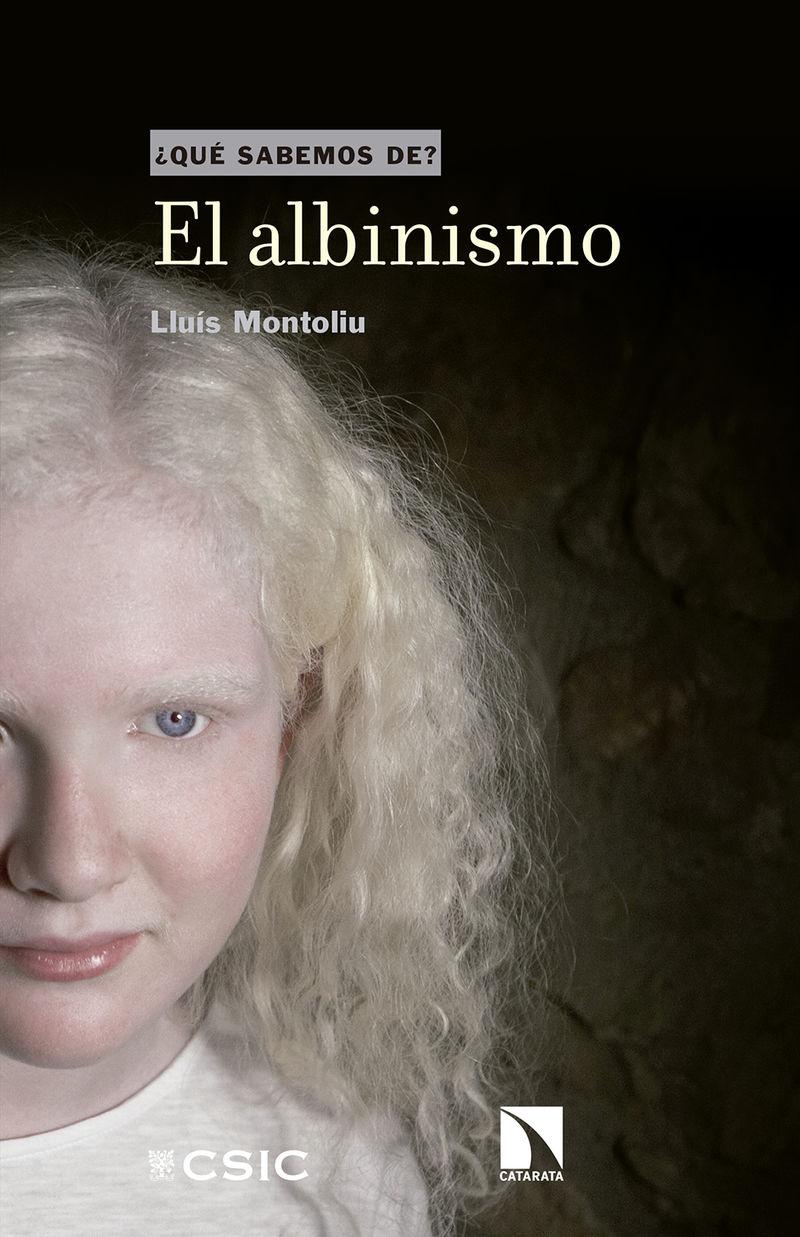 El albinismo - Lluis Montoliu Jose