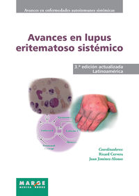 AVANCES EN LUPUS ERITEMATOSO SISTEMICO - LATINOAMERICA