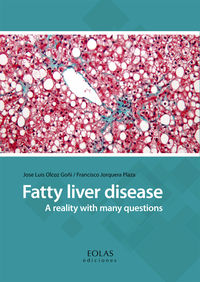 FATTY LIVER DISEASE - A REALITY WITH MANY QUESTIONS
