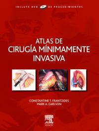 ATLAS DE CIRUGIA MINIMAMENTE INVASIVA