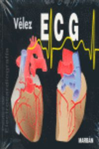ECG - PAUTAS DE ELECTROCARDIOGRAFIA (2ª ED)