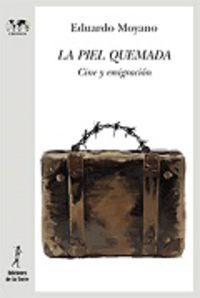 La piel quemada - Eduardo Moyano