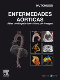 ENFERMEDADES AORTICAS - ATLAS DE DIAGNOSTICO POR IMAGEN (+DVD-ROM)