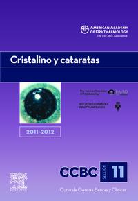 CRISTALINO Y CATARATAS 2011-2012