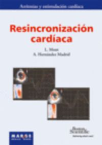 RESINCRONIZACION CARDIACA