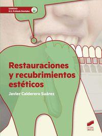 Gs - Restauraciones Y Recubrimientos Esteticos - Javier Calderero Suarez
