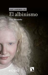 El albinismo - Lluis Montoliu