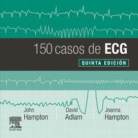 (5 ED) 150 CASOS DE ECG