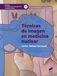 GS - TECNICAS DE IMAGEN EN MEDICINA NUCLEAR - IMAGEN PARA EL DIAGNOSTICO Y MEDICINA NUCLEAR
