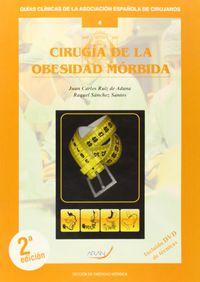 CIRUGIA DE LA OBESIDAD MORBIDA
