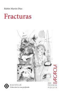 Fracturas - Ruben Martin Diaz