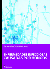 Enfermedades Infecciosas Causadas Por Hongos - Fernando Cobo Martinez