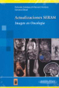 Actualizaciones Seram - Imagen En Oncologia - Yolanda Pallardo Calatayud / Antonio Revert Ventura