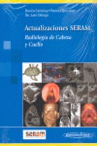ACTUALIZACIONES SERAM - RADIOLOGIA DE CABEZA Y CUELLO