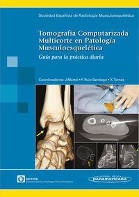 Tornografia Computarizada Multicorte En Patologia Musculoes - Serme / [ET AL. ]